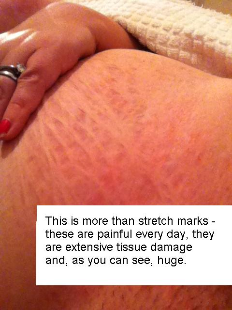 stretch marks damaged tissue